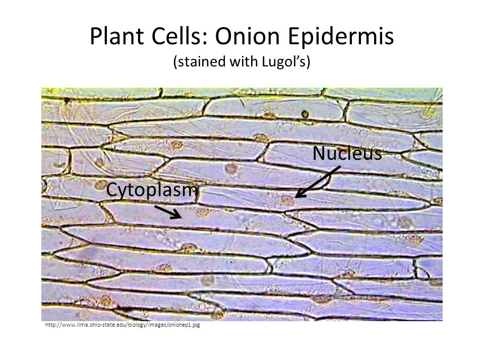 Plant Cells: Onion Epidermis (stained with Lugol's)