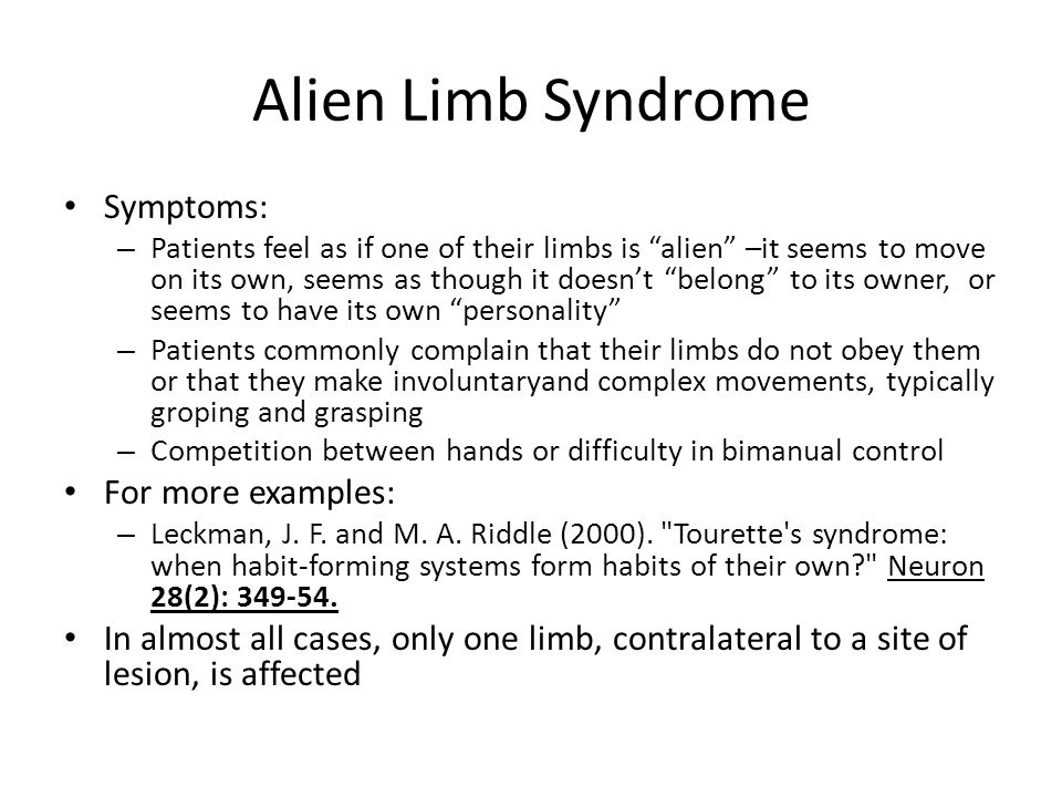 Alien Limb Syndrome Symptoms: For more examples: