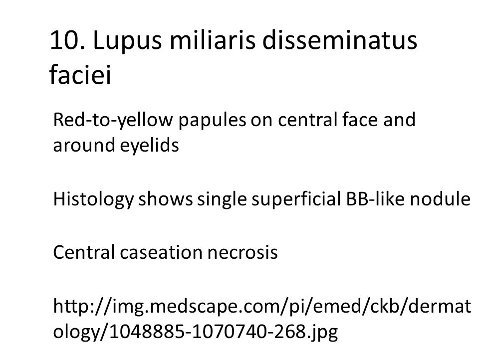 10. Lupus miliaris disseminatus faciei