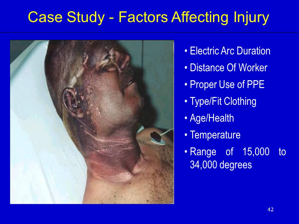 Case Study - Factors Affecting Injury