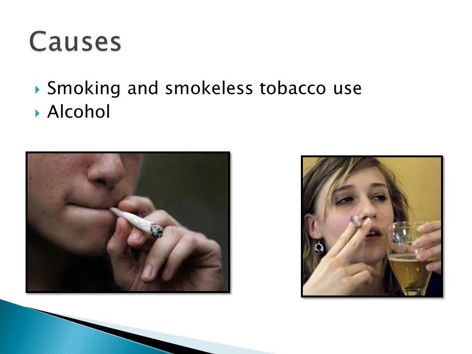 Causes Smoking and smokeless tobacco use Alcohol