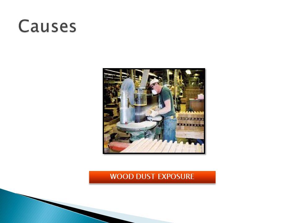 Causes WOOD DUST EXPOSURE