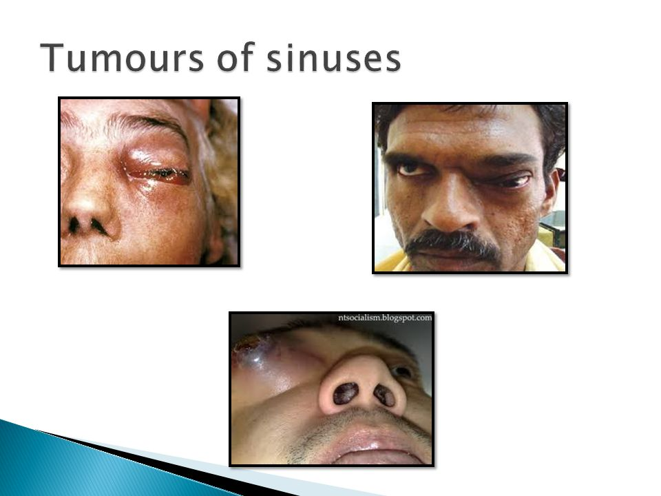 Tumours of sinuses