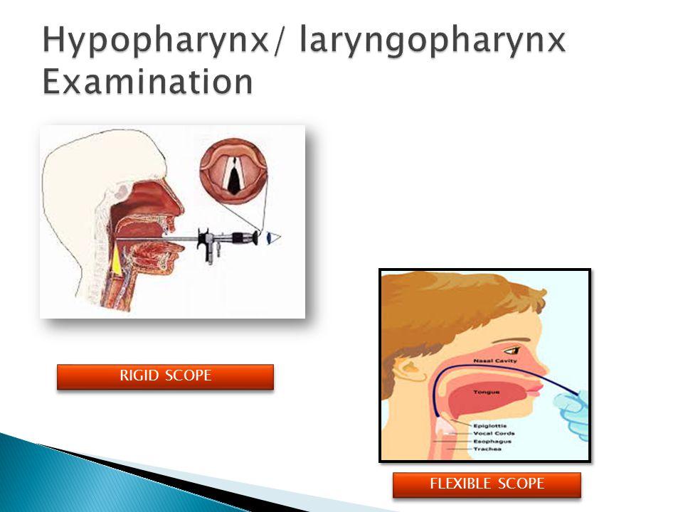 Hypopharynx/ laryngopharynx Examination