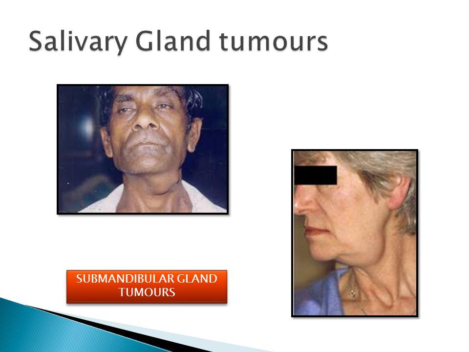 Salivary Gland tumours