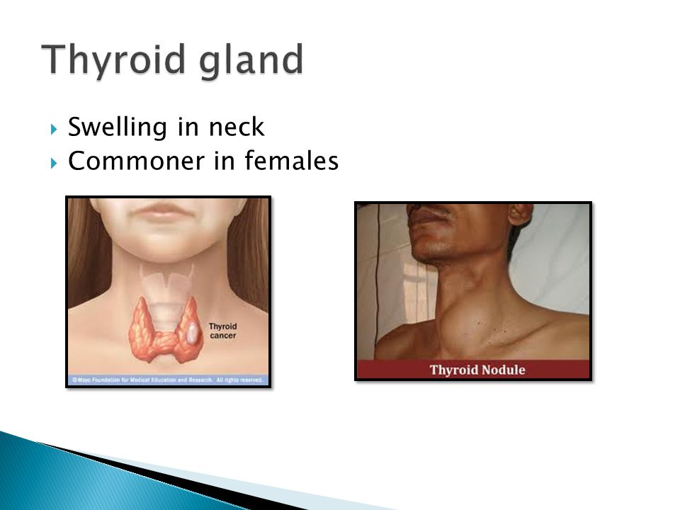 Thyroid gland Swelling in neck Commoner in females