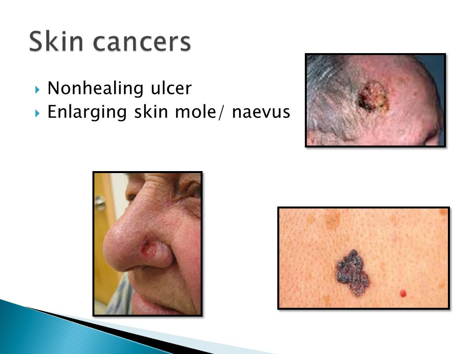 Skin cancers Nonhealing ulcer Enlarging skin mole/ naevus