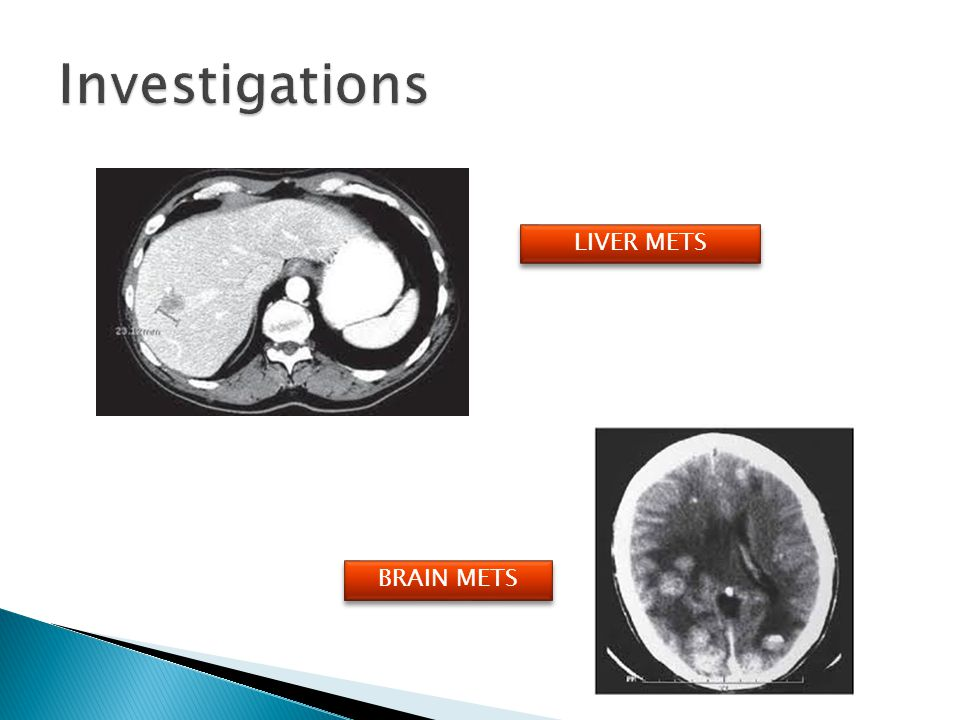 Investigations LIVER METS BRAIN METS