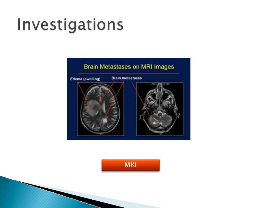 Investigations MRI
