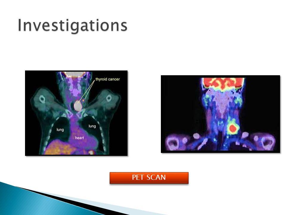 Investigations PET SCAN