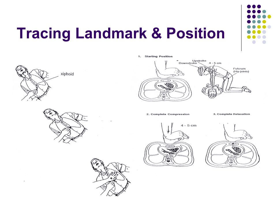Tracing Landmark & Position
