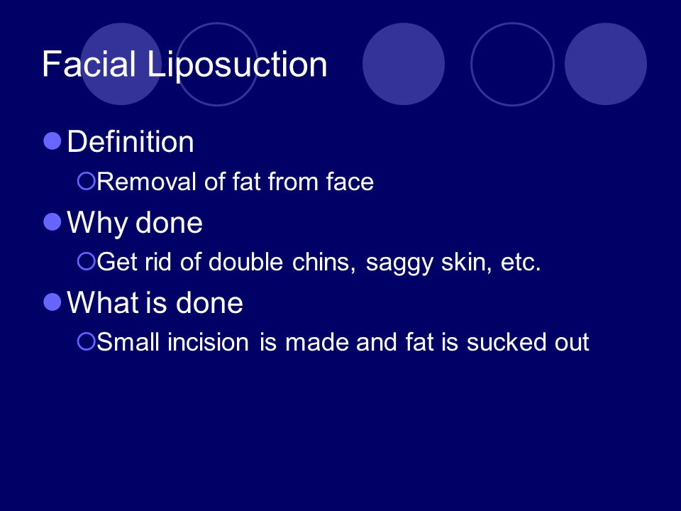Facial Liposuction Definition Why done What is done