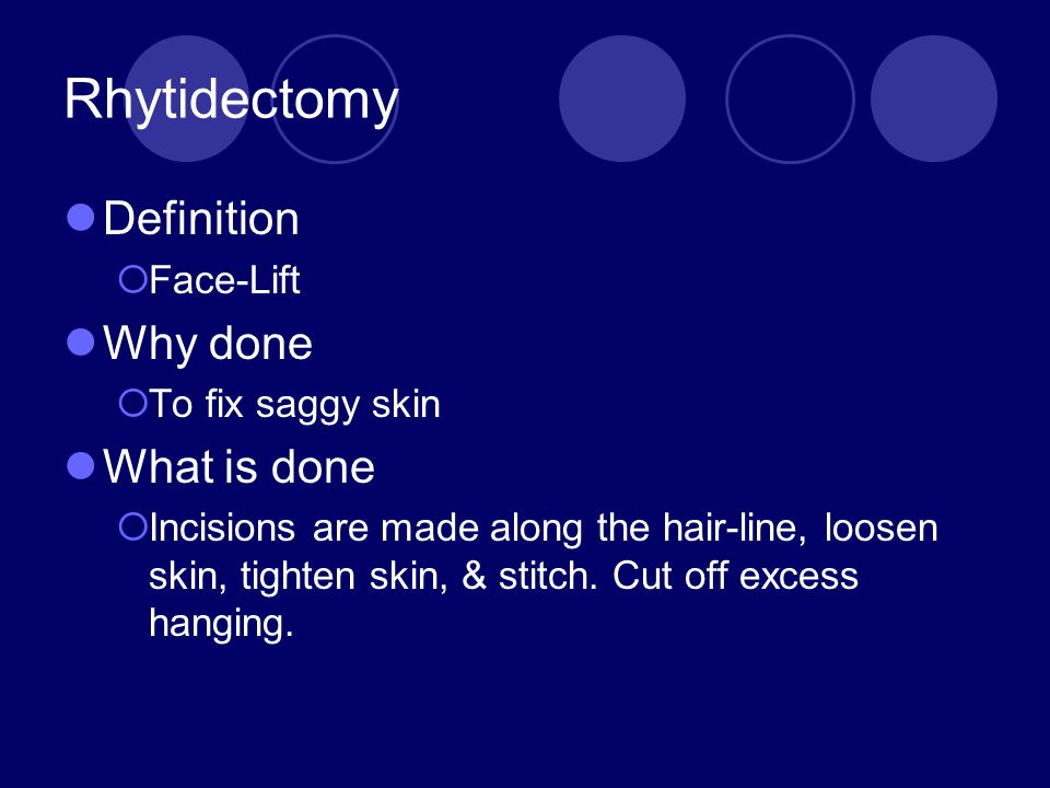 Rhytidectomy Definition Why done What is done Face-Lift
