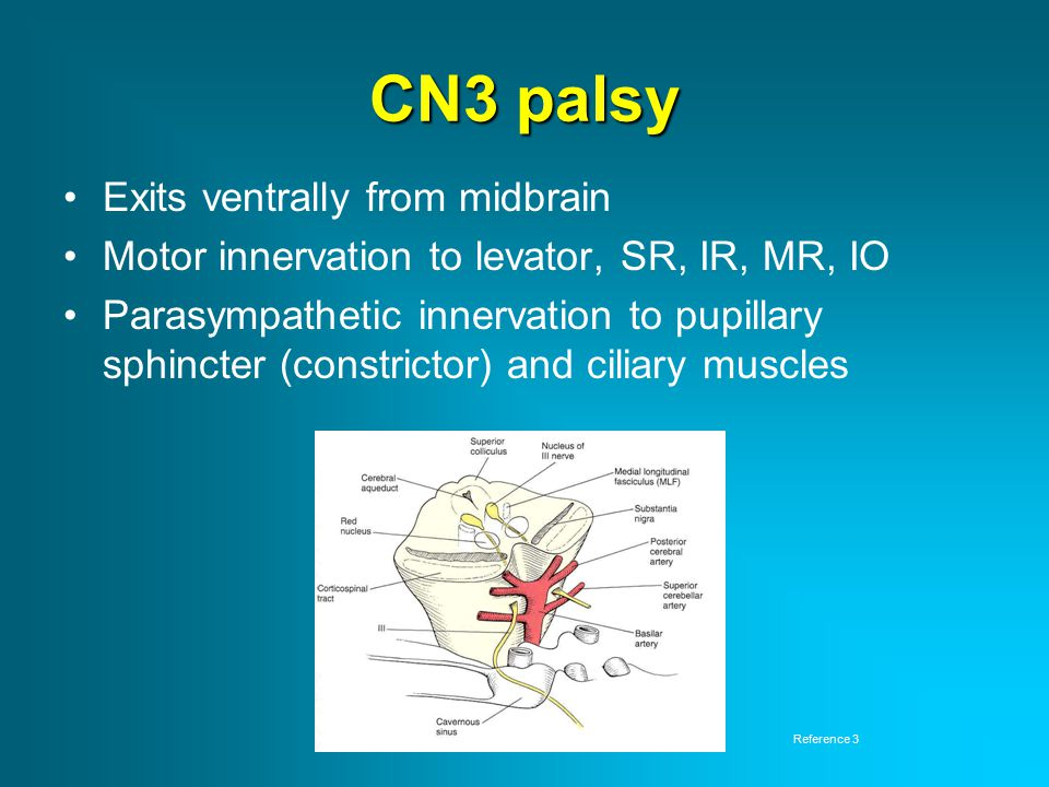 CN3 palsy Exits ventrally from midbrain