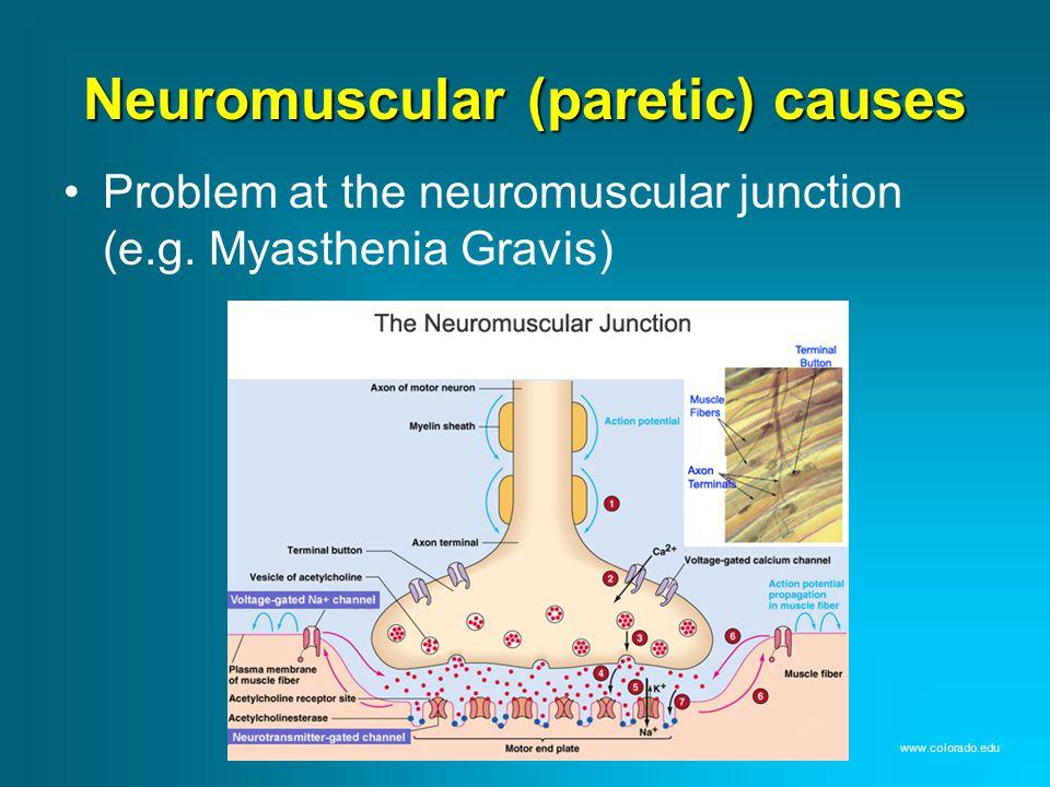 Neuromuscular (paretic) causes