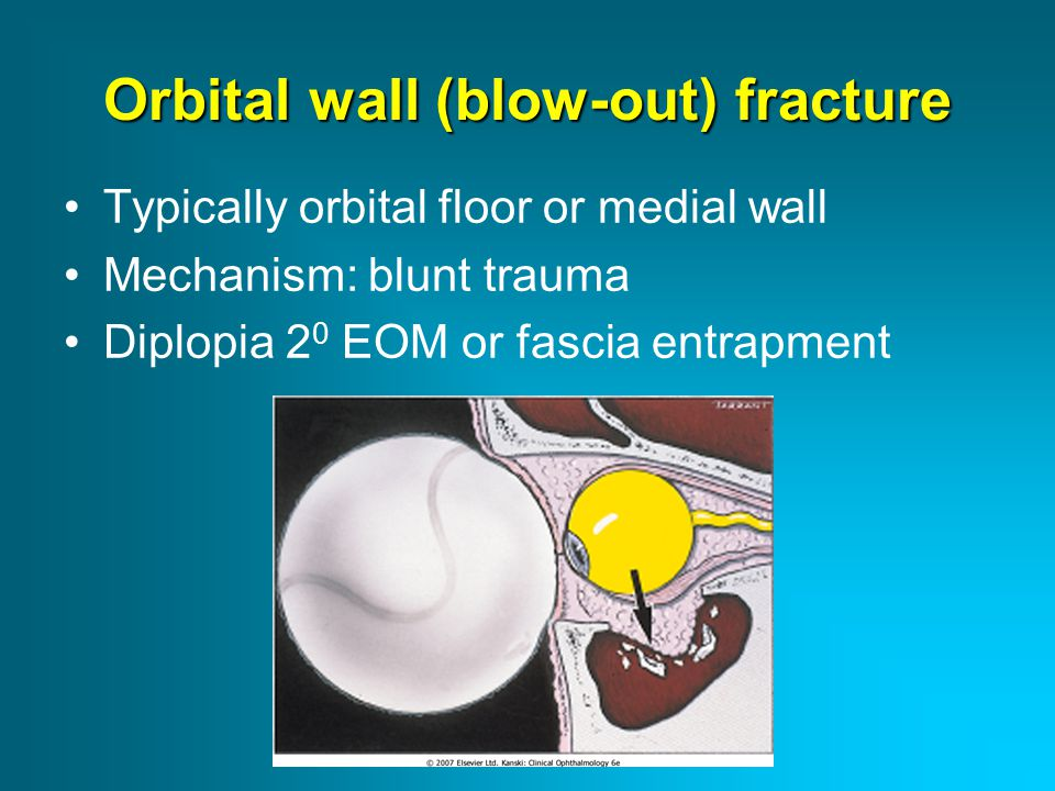 Orbital wall (blow-out) fracture