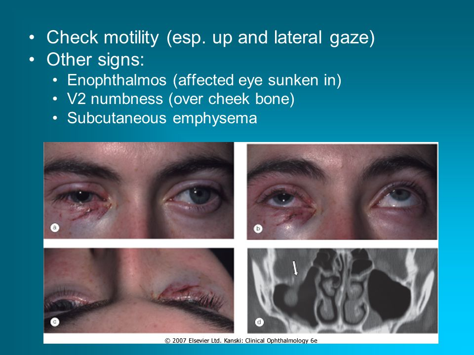 Check motility (esp. up and lateral gaze) Other signs: