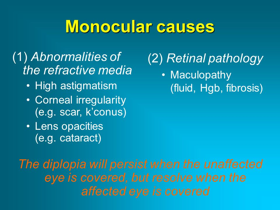 Monocular causes (1) Abnormalities of the refractive media