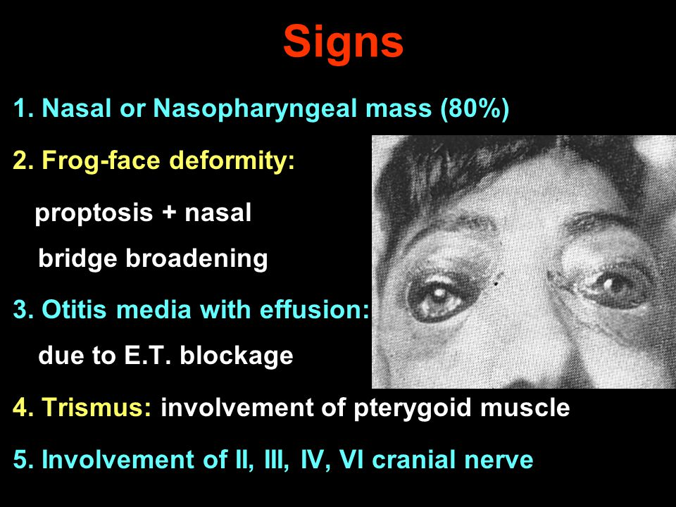 Signs 1. Nasal or Nasopharyngeal mass (80%) 2. Frog-face deformity: