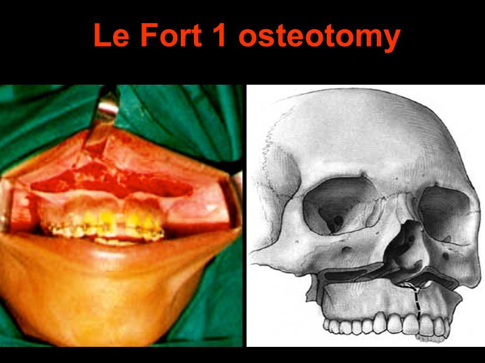 Le Fort 1 osteotomy