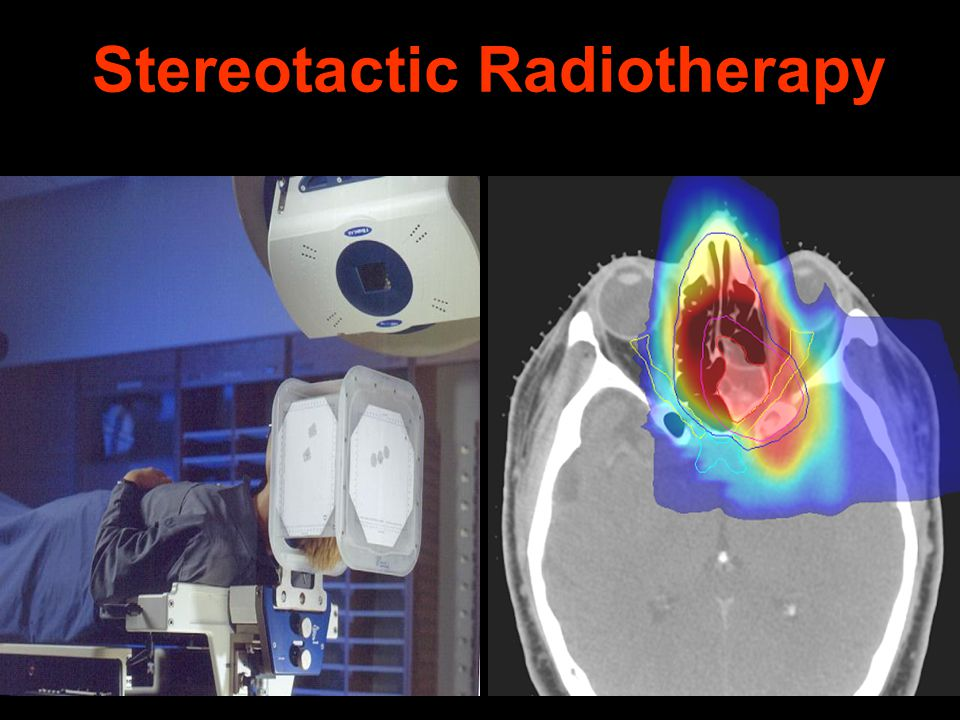 Stereotactic Radiotherapy