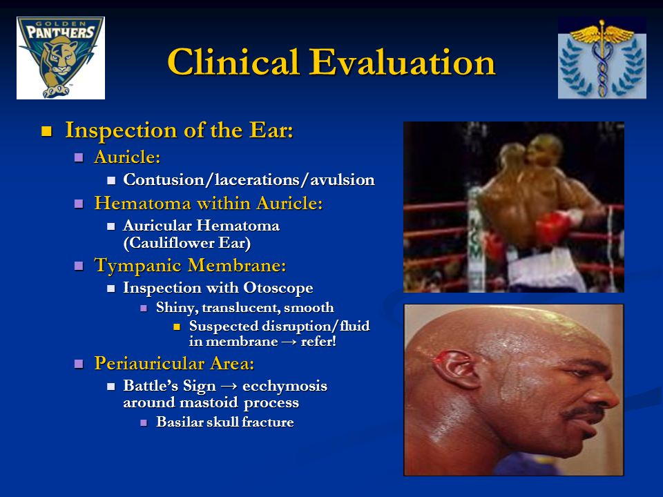 Clinical Evaluation Inspection of the Ear: Auricle: