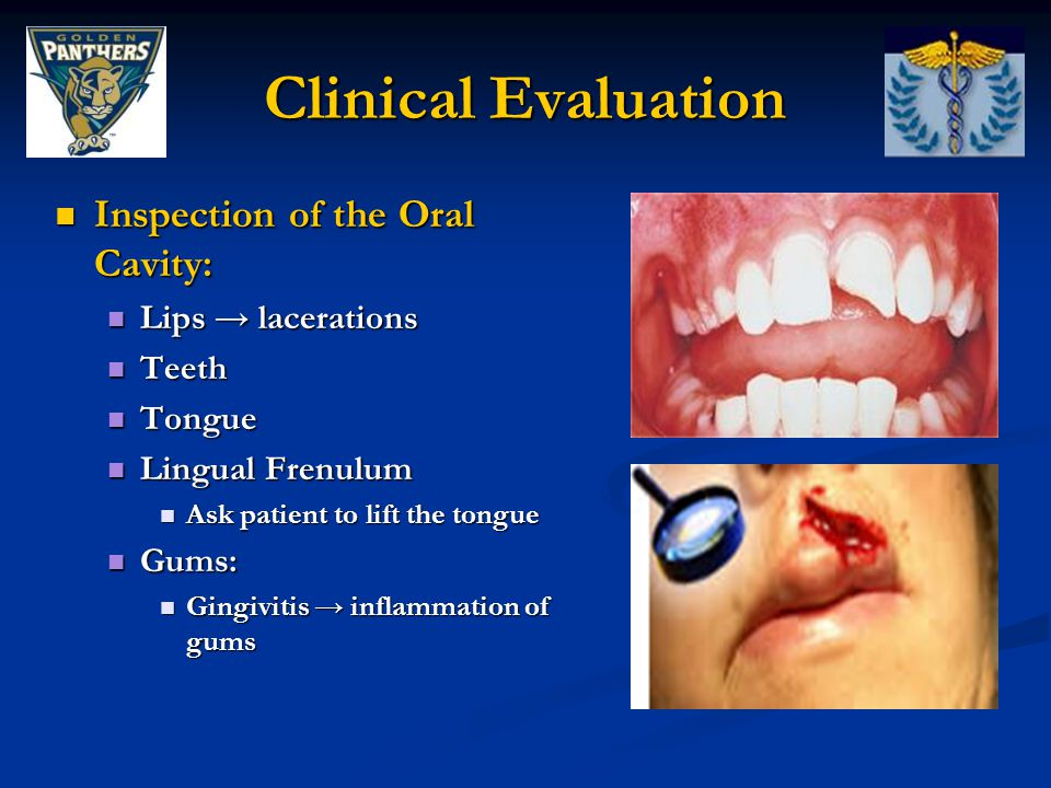 Clinical Evaluation Inspection of the Oral Cavity: Lips → lacerations