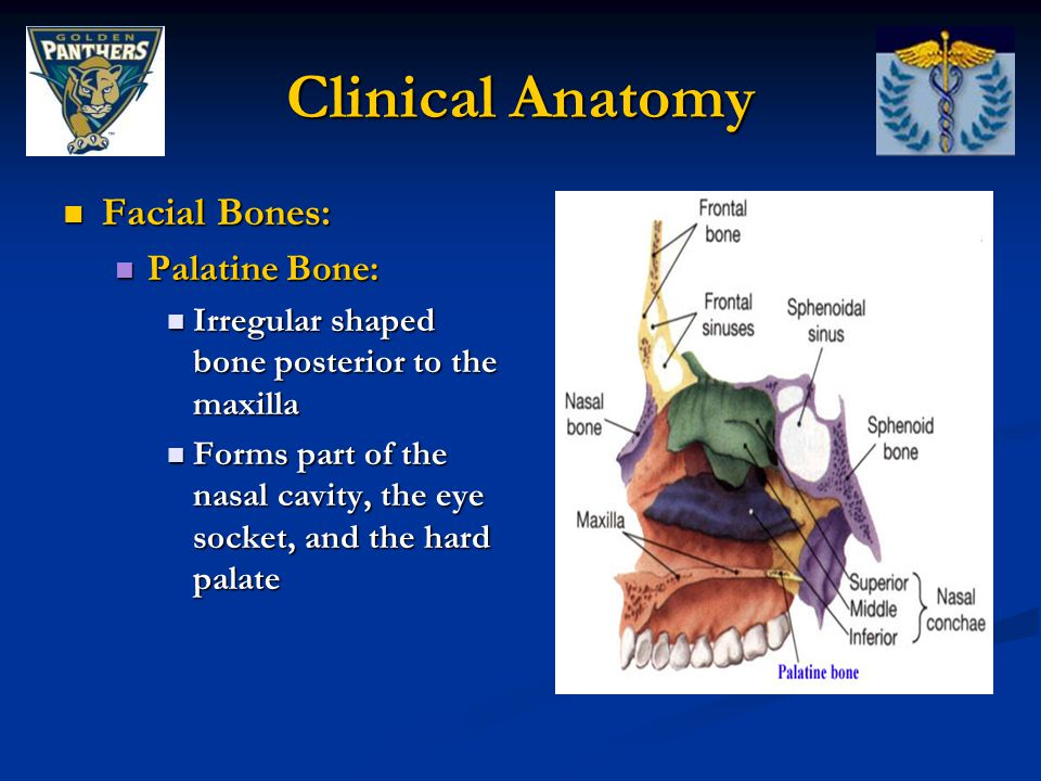 Clinical Anatomy Facial Bones: Palatine Bone: