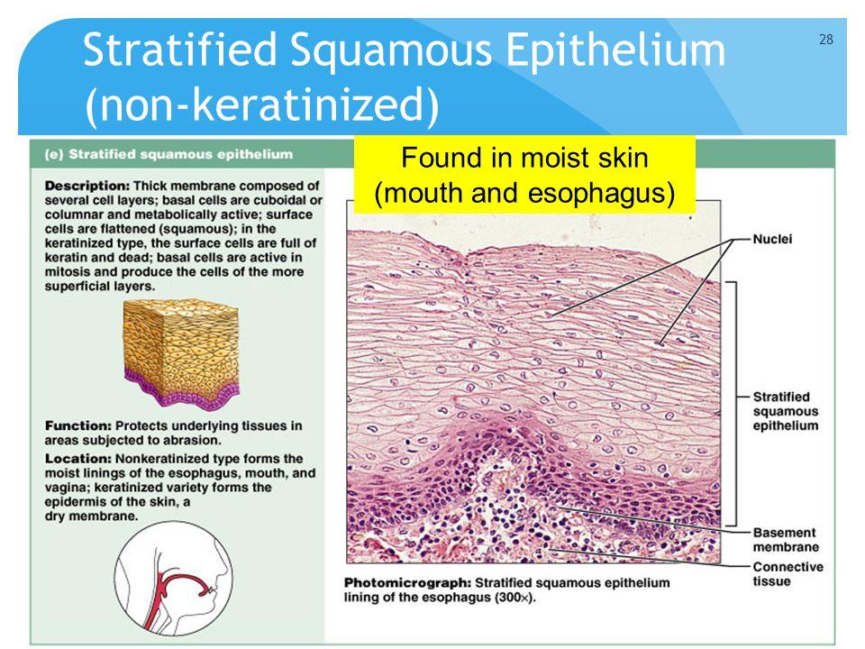 Stratified Squamous Epithelium (non-keratinized)