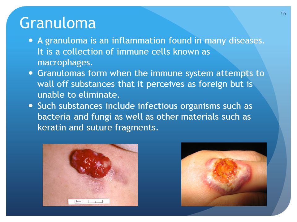 Granuloma A granuloma is an inflammation found in many diseases. It is a collection of immune cells known as macrophages.