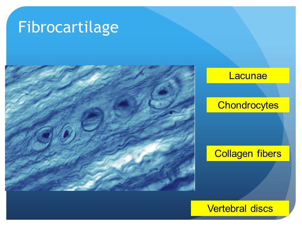 Fibrocartilage Lacunae Chondrocytes Collagen fibers Vertebral discs