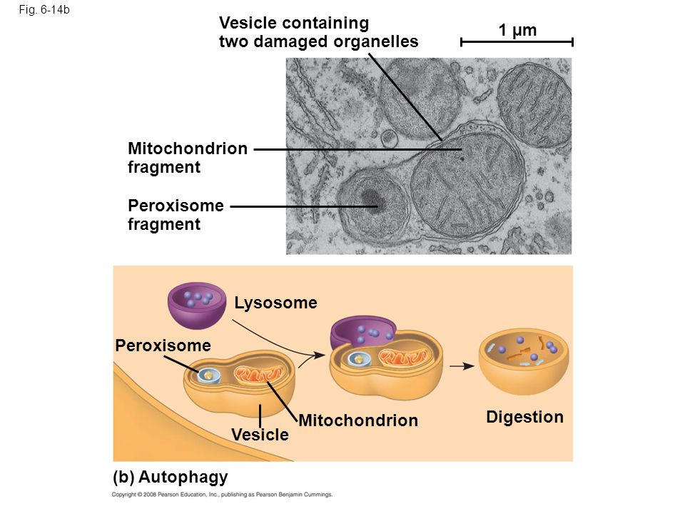 two damaged organelles 1 µm