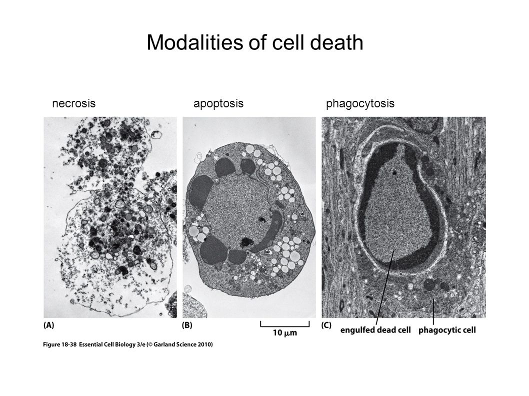 Modalities of cell death