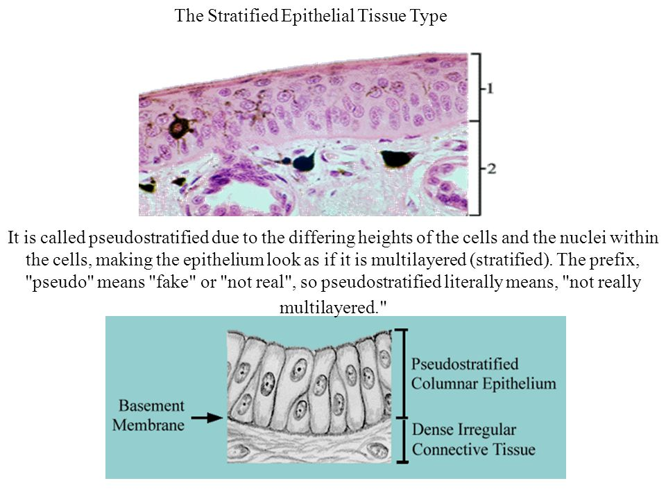The Stratified Epithelial Tissue Type