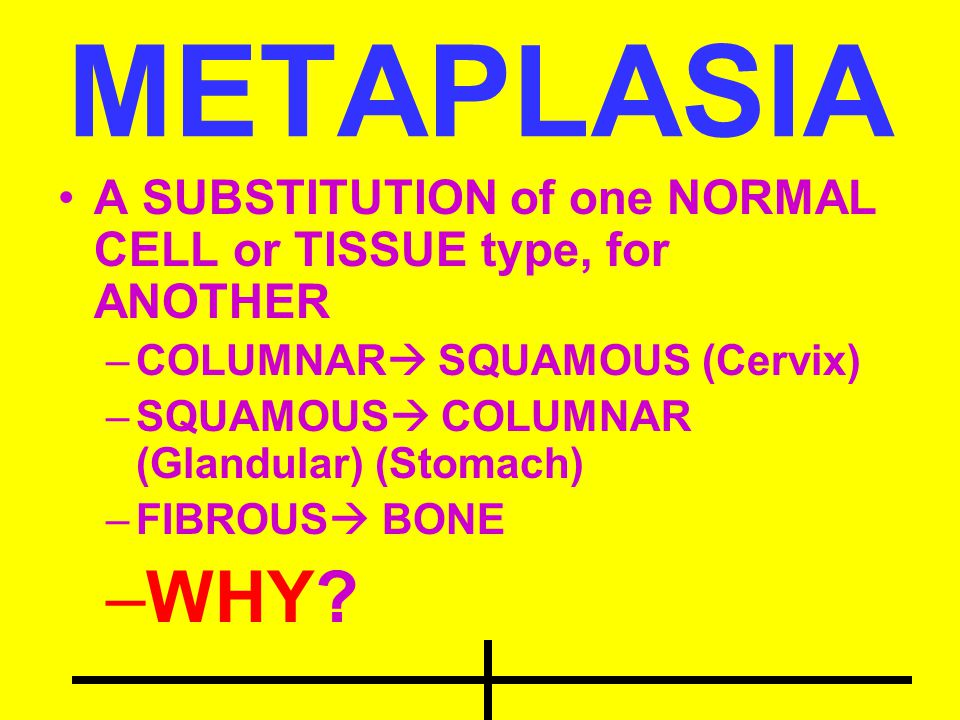 METAPLASIA A SUBSTITUTION of one NORMAL CELL or TISSUE type, for ANOTHER. COLUMNAR SQUAMOUS (Cervix)