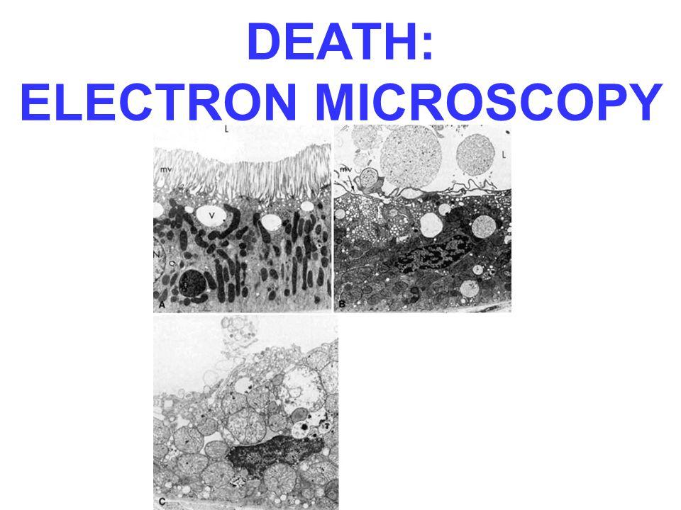 DEATH: ELECTRON MICROSCOPY
