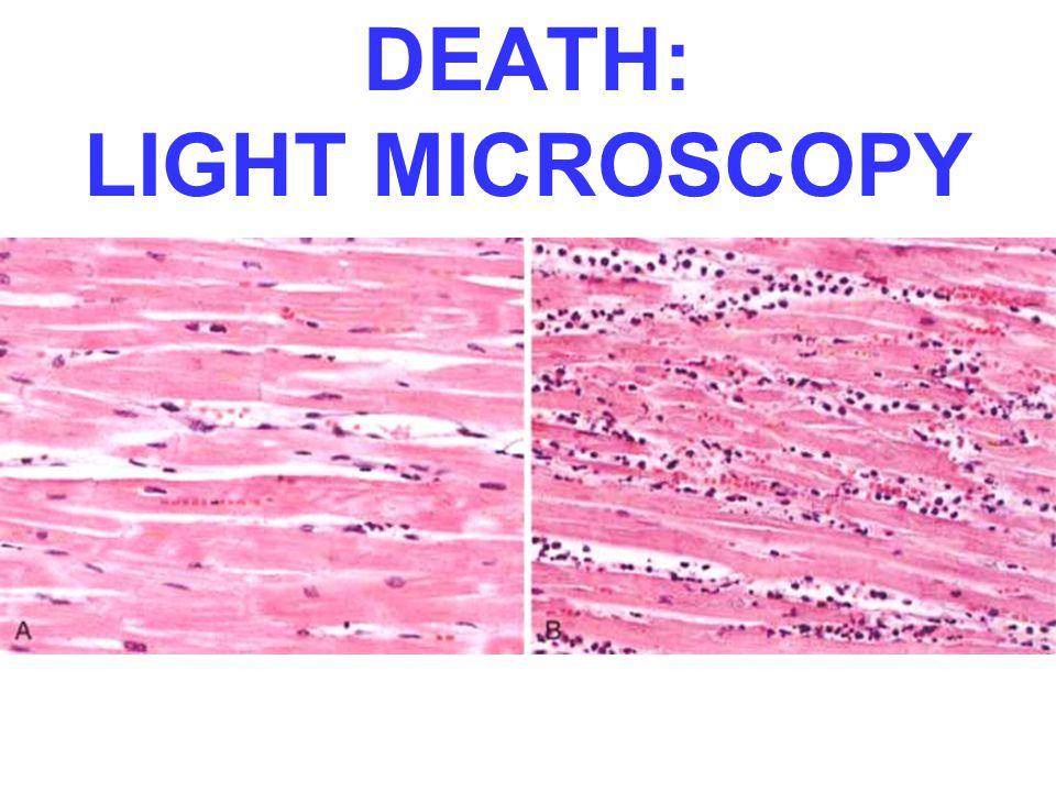 DEATH: LIGHT MICROSCOPY