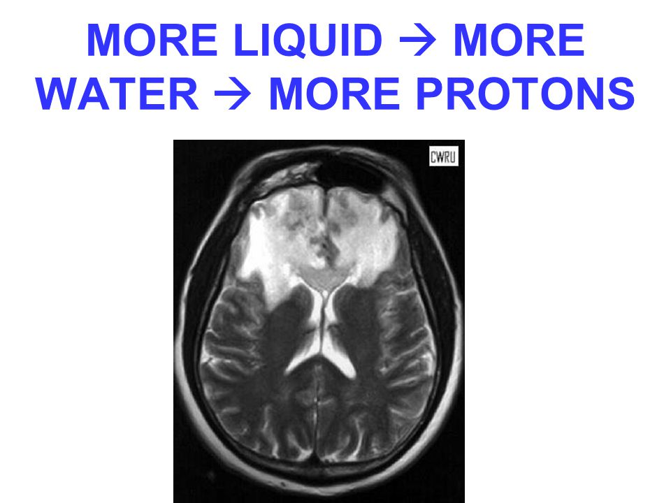 MORE LIQUID  MORE WATER  MORE PROTONS
