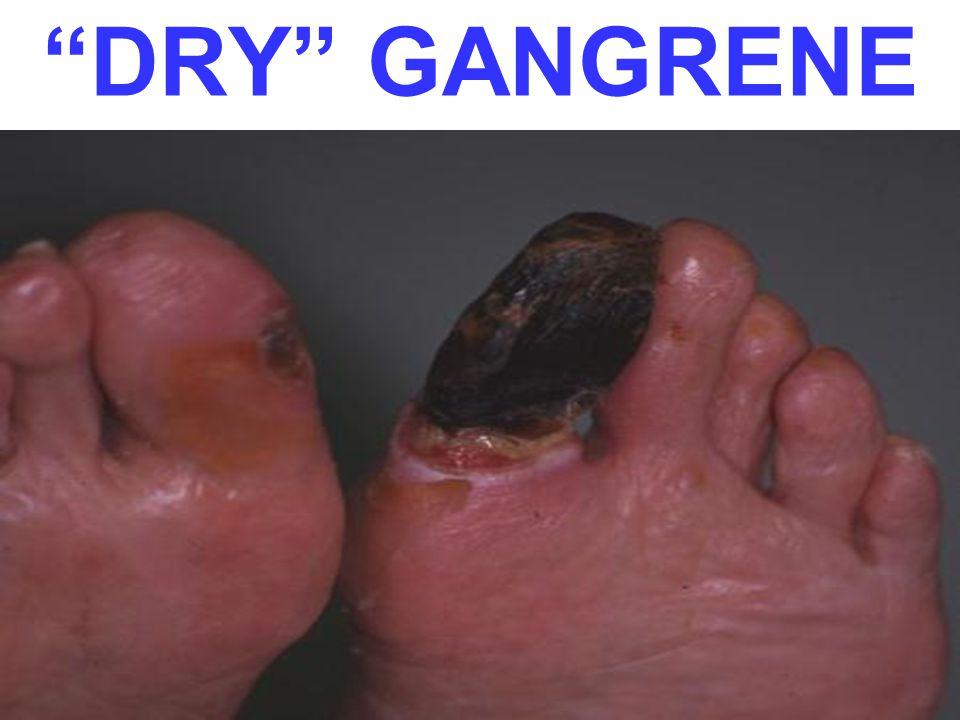 DRY GANGRENE Dry gangrene is deader, i.e., longer standing, than the death of wet gangrene.