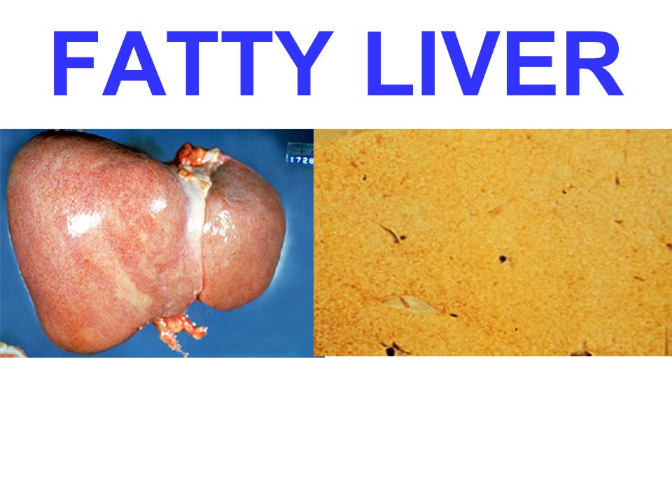 FATTY LIVER Name the three most common causes of fatty liver: Ans: diabetes, obesity, alcoholism (toxic)