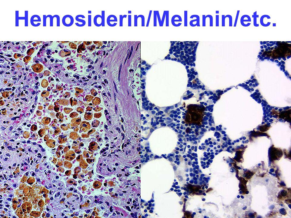 Hemosiderin/Melanin/etc.