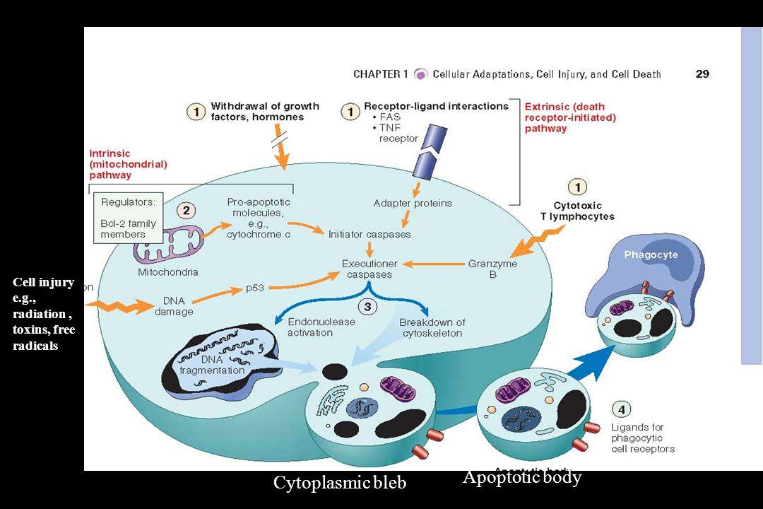Apoptotic body Cytoplasmic bleb