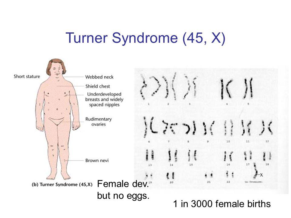 Turner Syndrome (45, X) Female dev. but no eggs.