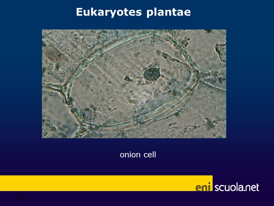 Eukaryotes plantae onion cell 11