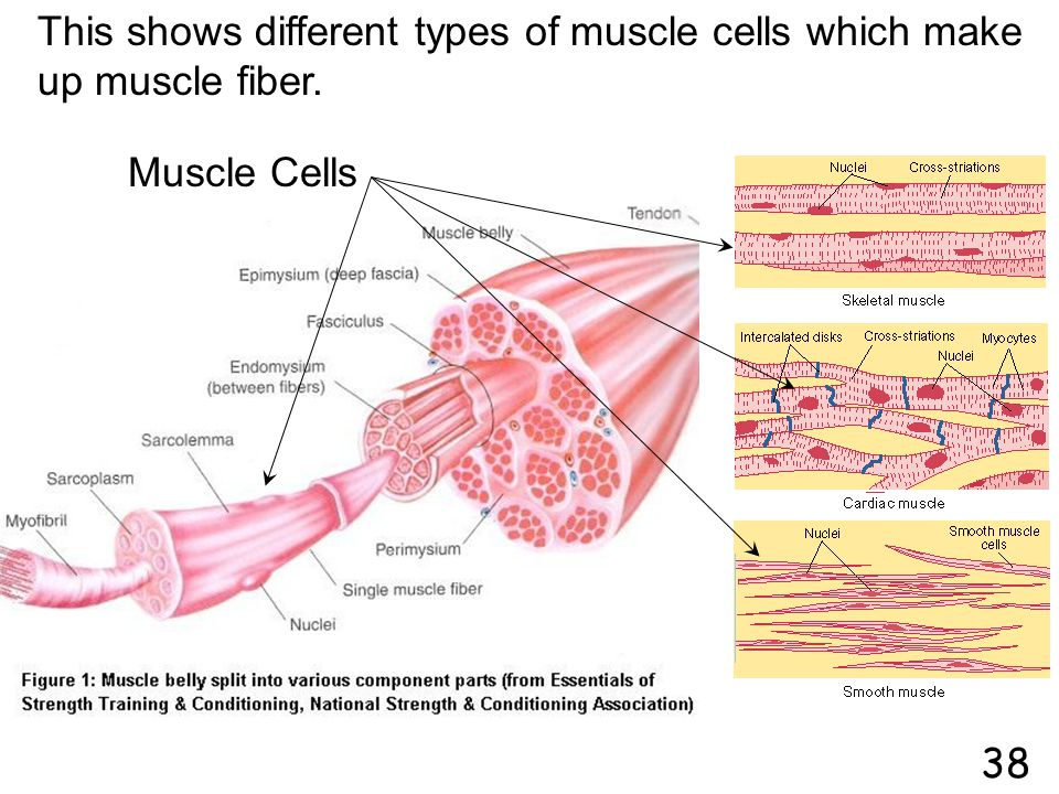 This shows different types of muscle cells which make up muscle fiber.