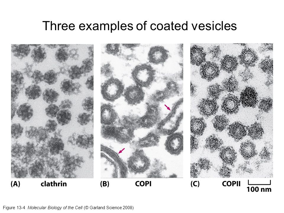 Three examples of coated vesicles