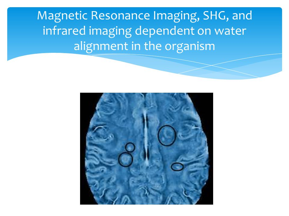 Magnetic Resonance Imaging, SHG, and infrared imaging dependent on water alignment in the organism