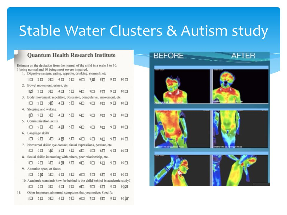 Stable Water Clusters & Autism study