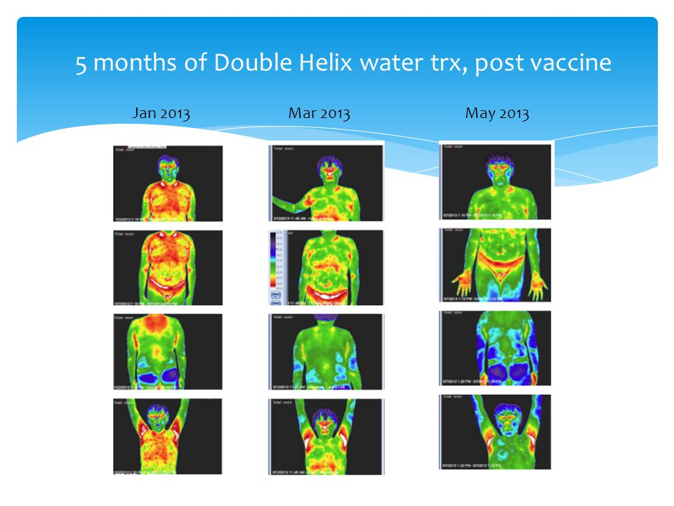5 months of Double Helix water trx, post vaccine