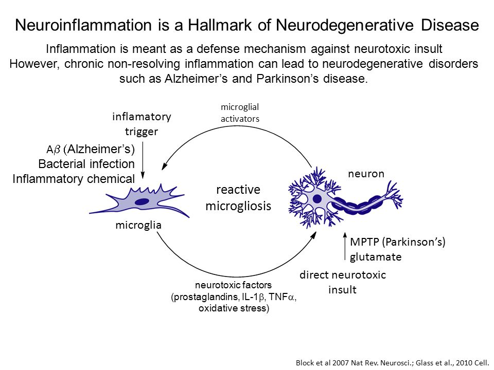 Neuroinflammation is a Hallmark of Neurodegenerative Disease